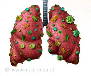 Double-edged Neutrophils: Kill Bacteria and Reduce Lung Damage