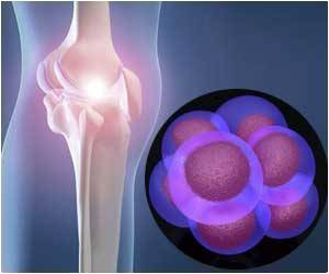 Damaged Joints Could be Regenerated by 3D Implantable Cartilage