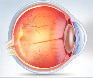 New Treatment for Age-related Macular Degeneration