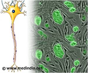 Stem Cell Transplants More Effective in Treating Severe Multiple Sclerosis