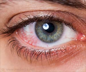 Dry Eye Associated With Chronic Pain Syndromes