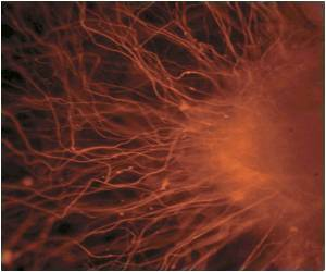Stem Cell Trial to Reverse Incurable Vision Loss