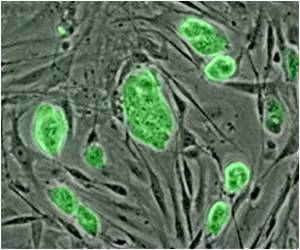 Stem Cells from Bone Better at Heart Tissue Regeneration Than Heart's Own Stem Cells