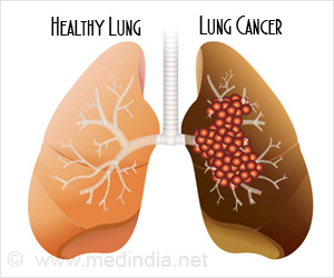 Lung Cancer Treatment with Nanoparticles Successful in Animal Study
