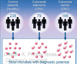 New Strategy To Develop An Improved Colorectal Cancer Test