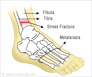 Stress Fracture Injuries Linked to Gene Variants