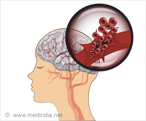 Hemorrhagic Stroke Can Be Treated With Special White Blood Cells