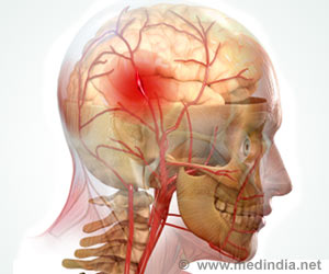 Haemorrhagic Stroke Highest in People of North East India