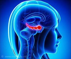 Recurrent Depression Tied to Smaller Hippocampus