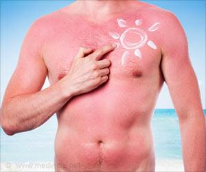 Severe Sunburn Causes Dent In Man's Head