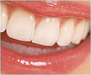 Non-fluoride Varnishes Help Prevent Cavities
