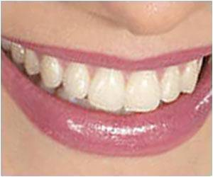 Online DIY Teeth Whitening Techniques Putting Teens Dental Health At Risk