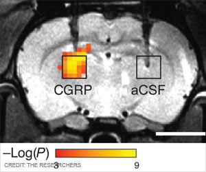 New Radiation-Free Brain Imaging Technique