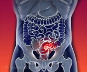 Novel Way to Boost Colorectal Cancer Screening