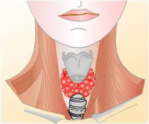 New Genetic Mutation Related to Hypothyroidism Syndrome