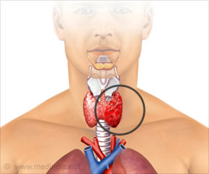 Cabozantinib may Treat Resistant Form of Thyroid Cancer