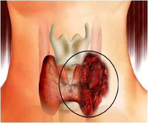Delay in Treatment Worsens Thyroid Goiters in Men