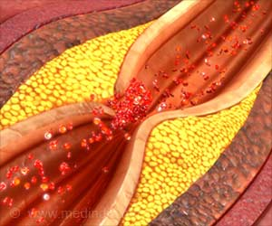 Prediction of Atherosclerosis Risk Through a Blood Cell Marker