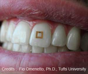 Dental Sensors Can Help Track What You Eat