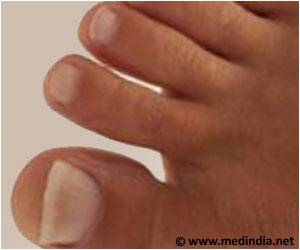 Guidelines for Testing and Treating Toenail Fungus