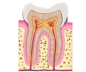 Cells from Teeth may Repair Damaged Spines?