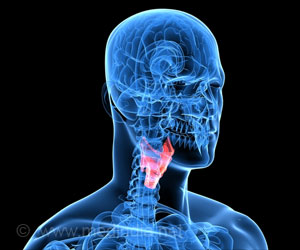 Laryngeal Cancer Could be Due to Persistent Sore Throat