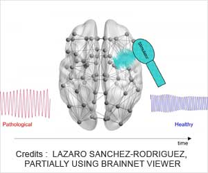 Alzheimer's: New Tool Helps Develop Personalized Treatment