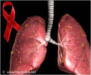 HIV Patients More Likely to Develop Tuberculosis