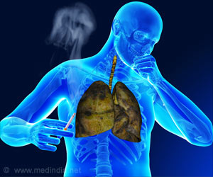 People Affected With Diabetes Have An Increased Risk of Contracting Tuberculosis