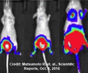 Flufenamic Acid - Cold Medicine To Cease Metastatic Bladder Cancer