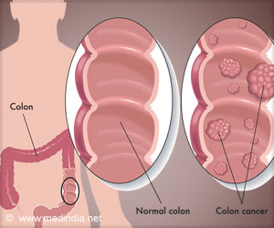 Risk Of Colorectal Cancer High In Overweight Adolescents
