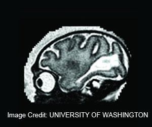 How Zika Virus Affect Fetal Brain Development During Pregnancy