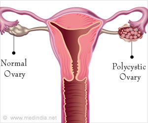 Polycystic Ovary Syndrome is the Third Major Cause of Infertility Among Women in India