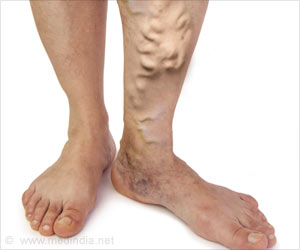 Varicose Veins Increase Risk of Blood Clots