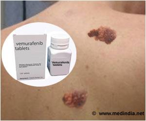 Over 5000 Melanoma Patients in Europe Have No Access to New Life Saving Drugs