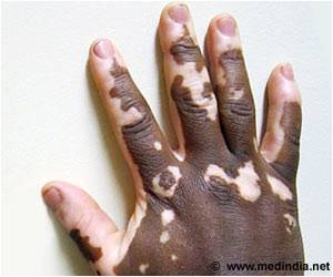Novel Combination of Arthritis Drug and Light Therapy to Treat Vitiligo