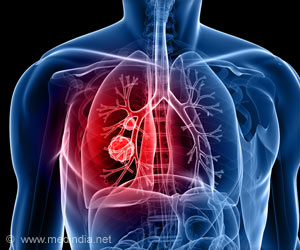 Lung Cancer Treatment: White Blood Cell Boosting Drugs Found Safe For Chemoradiotherapy