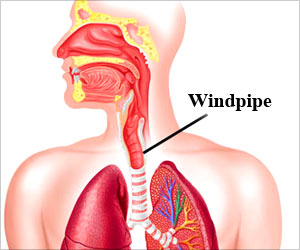 Living Human Windpipes can Replace Damaged Trachea