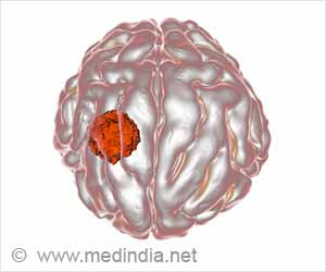 New Method to Fight Brain Tumor
