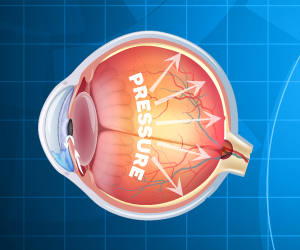 New Compounds Designed Can Treat Glaucoma