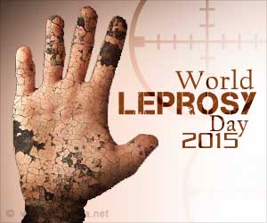 Anti-Leprosy Day: President P.Mukherjee Extends Wishes