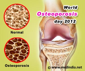 World Osteoporosis Day 2012