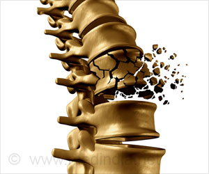 Osteoporotic Bisphosphonate Drugs are Linked to Risk of Micro-cracks in the Bone