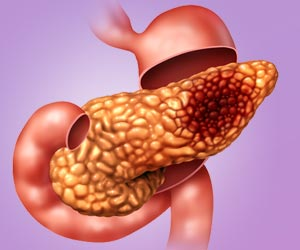New Combination Blood Test Helps Early Detection of Pancreatic Cancer