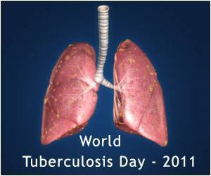 World Tuberculosis Day 2011: