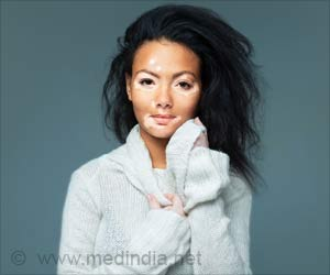 Vitiligo is a Skin Disease Worthy of Attention - World Vitiligo Day