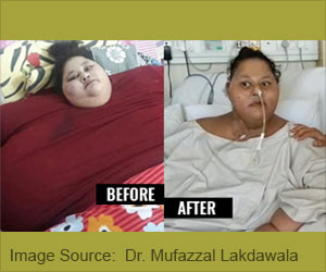 World's Heaviest Woman Dies 4 Months After Weight Loss Surgery