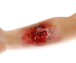 Researchers Find New Way To Enhance Wound Healing Process