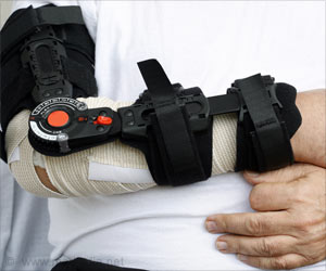 Obesity, Smoking Impact Healing After Wrist Fracture Surgery