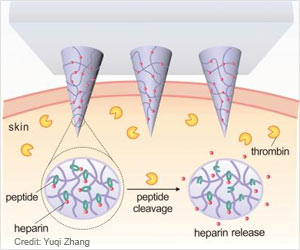Hyaluronic Acid - Heparin Smart Patch To Prevent Thrombosis